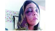 آخرین وضعیت زن جوانی که توسط همسر ٨٣ سالهاش شکنجه شد