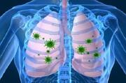 راهی برای کاهش عوارض تنفسی کرونا