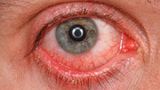 یک گزارش دیگر درباره علائم چشمی عفونت با ویروس کرونا