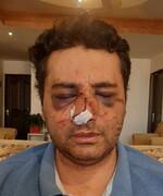 واکنش رئیس انجمن متخصصان بیهوشی به ضرب و شتم یک پزشک توسط همراهان بیمار