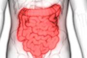 بیماری التهابی  روده خطر زوال عقل را افزایش می دهد