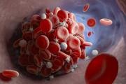 دانشمندان علت لخته شدن خون در بیماران کرونا را پیدا کردند