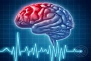 پیشگیری از سکته مغزی با چند راهکار ساده
