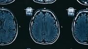 کرونا باعث میشود دستگاه ایمنی به مغز حمله کند