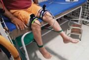 کدام بیماران کرونایی فیزیوتراپی نیاز دارند | مهمترین عارضه کرونا