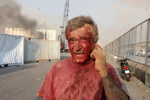 مرد زخمی پس از انفجار بزرگ بیروت