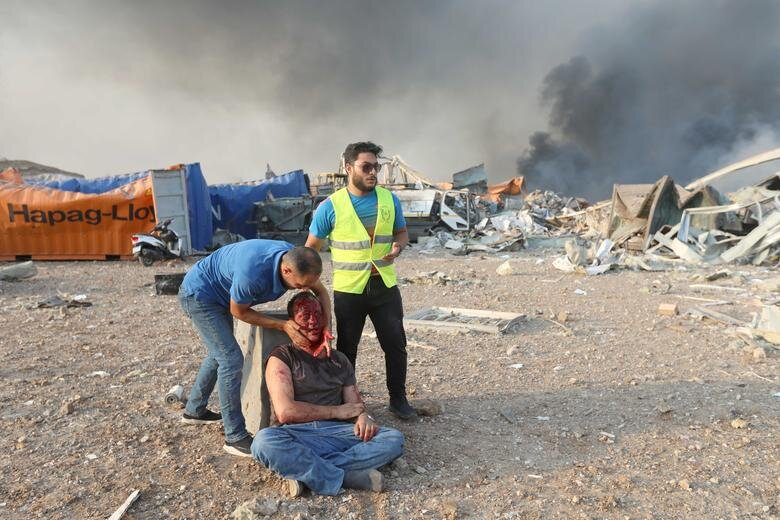 کمک به یک مرد زخمی در محوطه انفجار