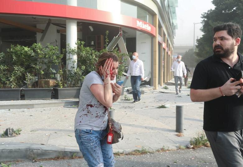 زن زخمی و آسیب دیده پس از انفجار بیروت