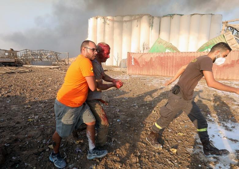 مردان در حال انتقال یک مصدوم در محوطه انفجار