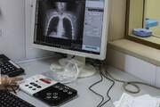 راهاندازی سامانه تبادل تصاویر پزشکی بینبیمارستانی