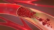 آشنایی با آزمایش قند خون