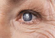 آشنایی با نشانههای مشکلات چشمی در افراد دیابتی