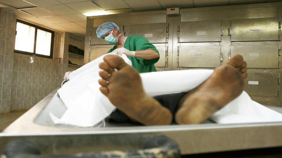 تشرح جسد - پزشکی قانونی