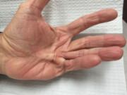 بیماری دوپوئیترن: وقتی انگشتان جمع میشوند