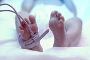نجات جان نوزاد نارس در بیمارستان دهدشت
