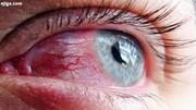 کشف کرونا در چشم زن ۶۴ ساله ۲ ماه بعد از بهبودی