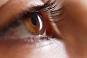 افزایش بیماریهای چشم در دوران کرونا | بروز نزدیکبینی در زیر ۱۸ سالهها