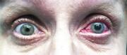 کروناویروس جدید میتواند چشمها را هم آلوده کند | بروز آب سیاه چشم در یک بیمار کووید-۱۹