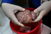 تاثیرات شدیدی که کرونا ممکن است بر مغز بگذارد | مغز برخی بیماران ۱۰ سال پیر شده است