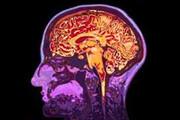 ساخت دستگاه تصویربرداری مادون قرمز مغز در مشهد