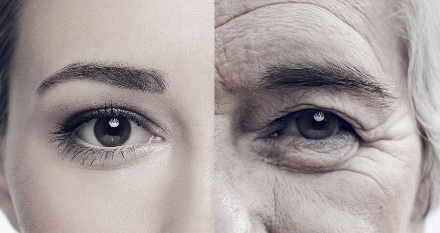 پیری - پوست - زن