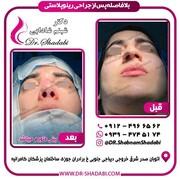آیا با جراحی بینی زیباتر خواهم شد ؟