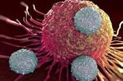 درمان کودکان مبتلا به سرطان خون با ریسک بالا در مؤسسه خیّریه محک