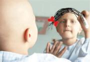 سرعت رشد سرطان در ایران بالاست / سالانه ۵۱ هزار مرگ