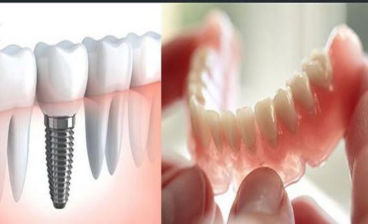هزینه انجام ایمپلنت دندان
