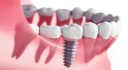 ایمپلنت یا دندان مصنوعی؟