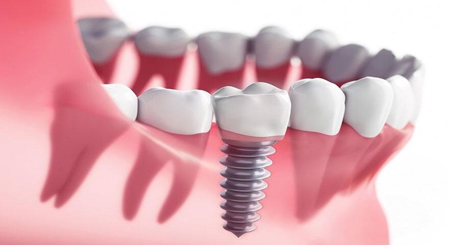 ایمپلنت دندان.jpg