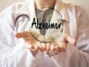 تشخیص زودهنگام ابتلا به آلزایمر با روشی ارزانقیمت