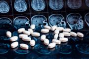 توقف بیماری آلزایمر با داروی جدید