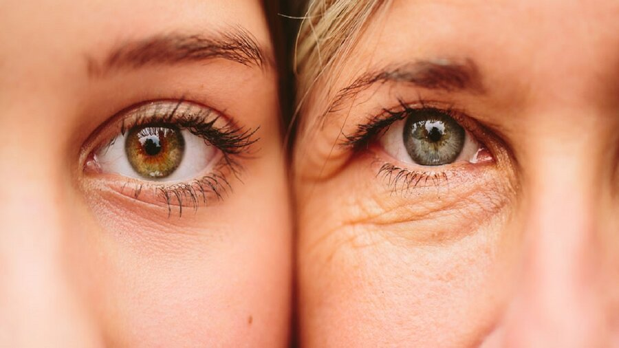 ۶ قانون طلایی برای جلوگیری از پیری پوست خانمها بعد از ۳۰ سالگی