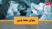 ویدئو | بلوای حذف غربالگری؛ اپیزود سقط جنین!