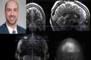سینوزیت مزمن فعالیت مغز را تغییر میدهد