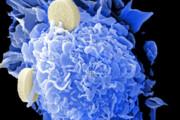 درمان چندوجهی، کلید اصلی درمان سرطان تهاجمی کودکان