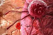 یک روش جدید برای پیشبینی سلولهایی که قرار است به سرطان مبتلا شوند!
