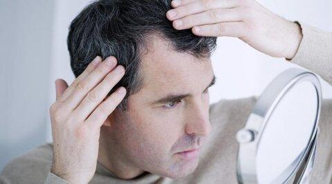 درمان سفیدی و ریزش مو با چند ترفند ساده در منزل