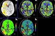 کروناویروس حتی در شکل خفیف ممکن است آسیب مغزی ایجاد کند