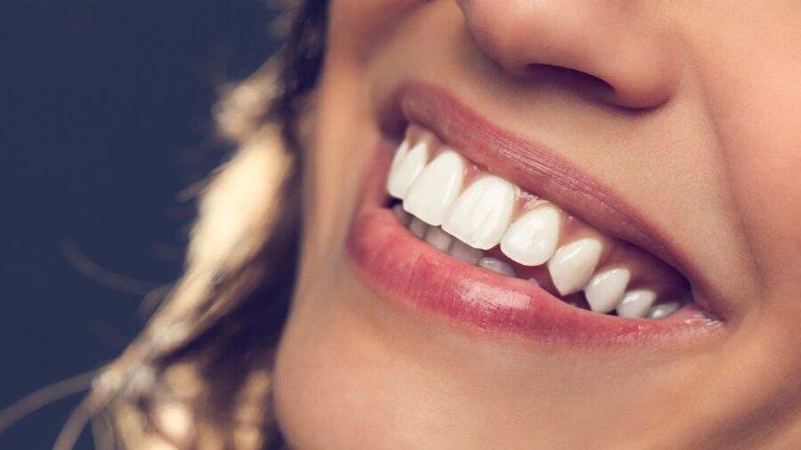 سفید کردن دندانها با چند روش ساده و کمهزینه