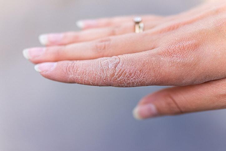 خشکی پوست - Dry skin