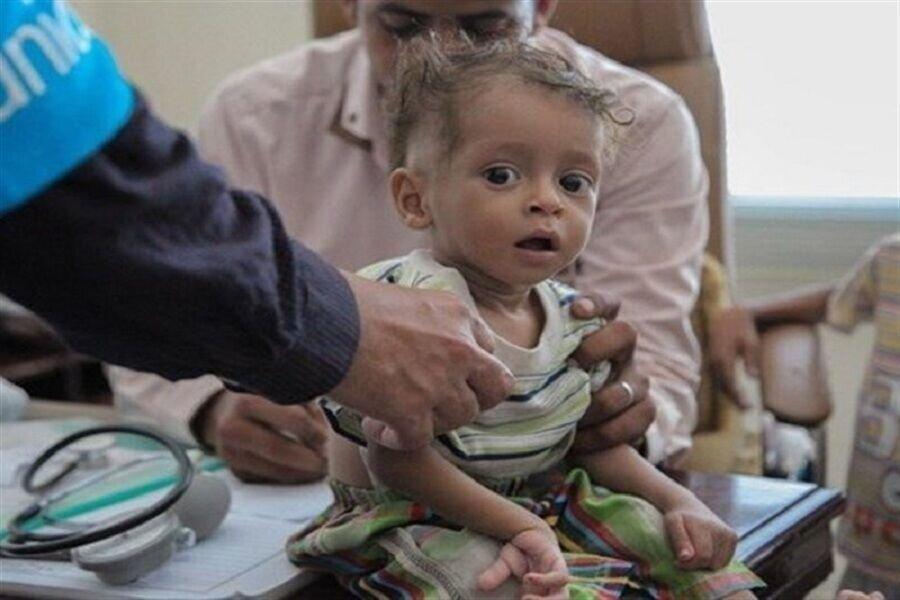 یونیسف: هر ۱۰ دقیقه یک کودک یمنی جان خود را از دست میدهد