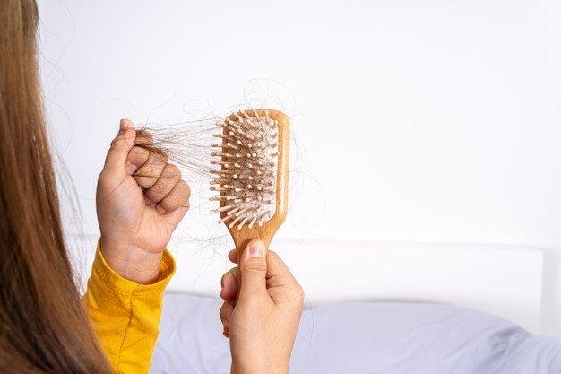 ریزش مو - موی سر - شانه - hair fall