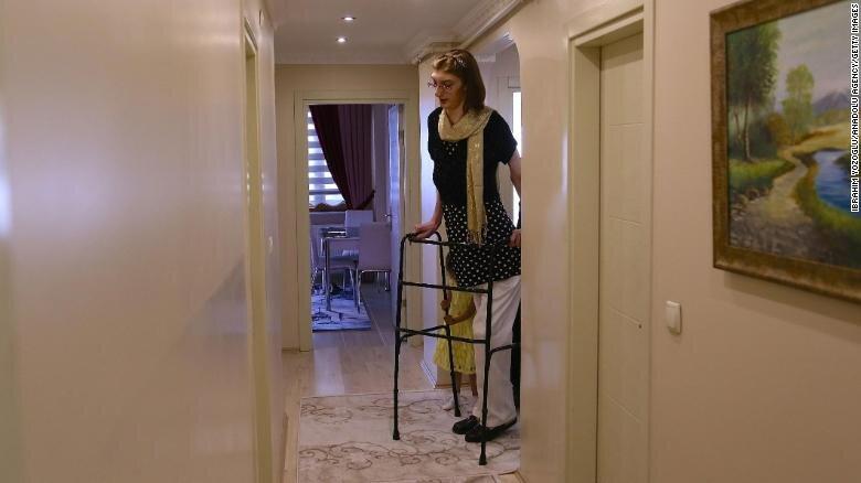 تصاویر   بلندقدترین زن دنیا اهل ترکیه و ۲۴ ساله است   دیدن زمین از فاصله ۲۱۵.۱۶ سانتیمتری!