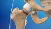 کاهش خطر شکستگی لگن به نصف با مصرف کلسیم و پرونئین